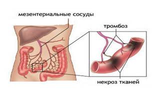 Инфаркт кишечника симптомы