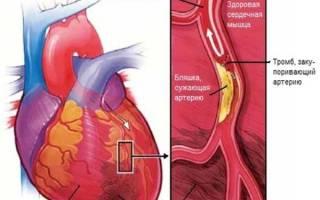 Боли при инфаркте миокарда