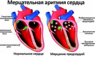 Лекарство от тахикардии и аритмии