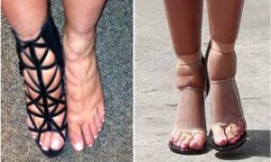 Препараты от отеков ног при сердечной недостаточности