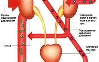 Симптоматическая нефрогенная гипертензия