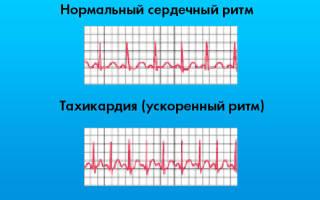 Заключение экг синусовая аритмия