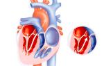 Операция при пороке сердца у взрослого