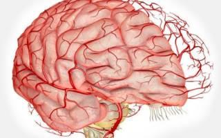Гимнастика при ишемии головного мозга