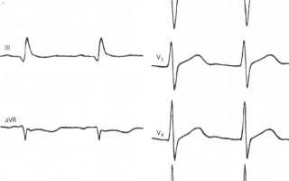 Диф диагностика инфаркта миокарда