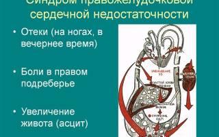 Проявление правожелудочковой сердечной недостаточности