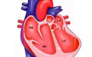 Аневризма левого желудочка после инфаркта
