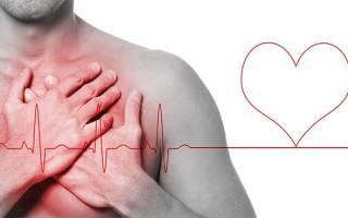 Давление при инфаркте миокарда у женщин