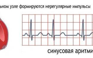 Признаки аритмии сердца у мужчин и лечение
