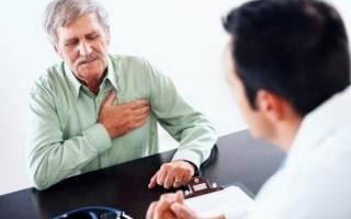 Симптомы стенокардии у мужчин