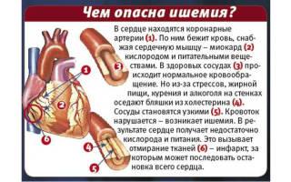 Ибс безболевая ишемия миокарда