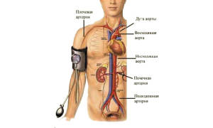 Патогенез артериальной гипертензии