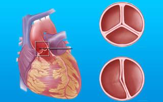 Ревматический порок сердца