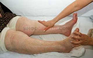 Отеки ног и сердечная недостаточность