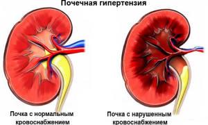 Препараты при почечной гипертензии