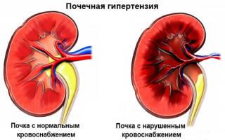 Таблетки при почечной гипертензии