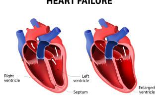 Почему человек задыхается при сердечной недостаточности