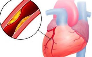 Нестабильная прогрессирующая стенокардия
