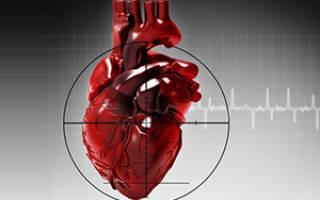 Предвестники инфаркта у женщин