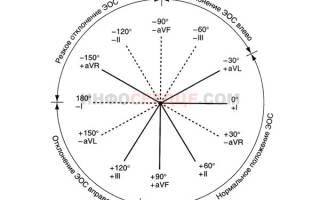 Синусовая брадикардия отклонение эос влево