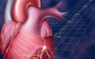 Обширный инфаркт причины