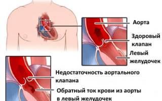 Недостаточность сердечного клапана