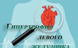 Гипертензия левого желудочка