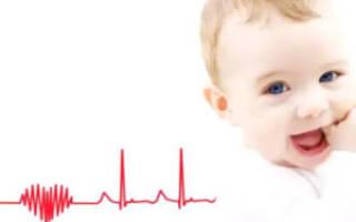 Признаки сердечной недостаточности у детей 5 лет
