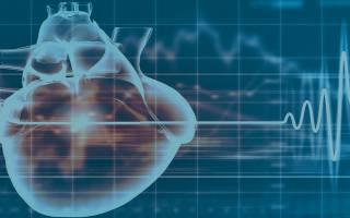 Как проявляется порок сердца у взрослых