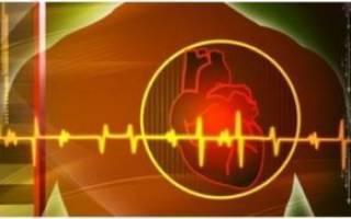 Аритмия при низком давлении