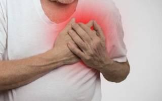 Симптомы мерцательной аритмии сердца у мужчин