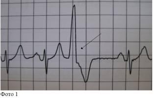 Желудочковая аритмия лечение