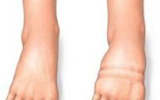 Сердечная недостаточность отеки ног и живота