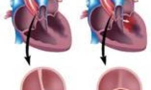 Врожденный порок сердца двухстворчатый аортальный клапан