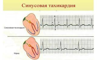 Что такое аритмия и тахикардия сердца