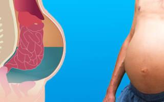 Асцит при сердечной недостаточности прогноз