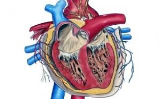 Порок сердца аномалия эбштейна