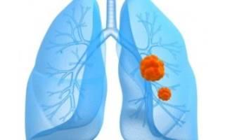 Гипертензия легочной артерии причины