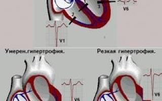 Легочная гипертензия гипертрофия правого желудочка