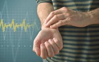 Приступ брадикардии симптомы