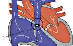 Врожденный порок сердца стеноз легочной артерии