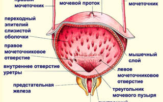 Гипертензия мочевого пузыря что это такое