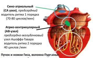 Постоянная форма мерцательной аритмии