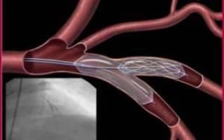 Стенд на сердце при инфаркте