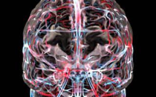 Гирудотерапия при ишемии головного мозга