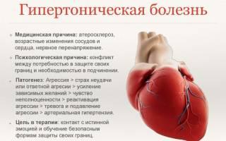 Гипертония мкб 10