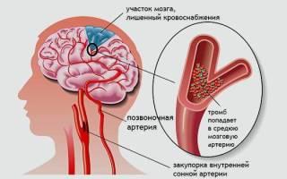 Ишемия головного мозга у взрослого мужчины