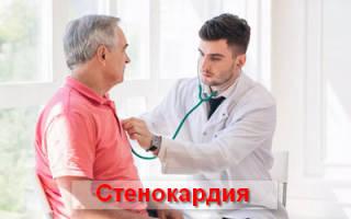 Как лечить стенокардию сердца