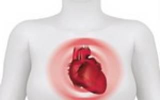 Левожелудочковая сердечная недостаточность симптомы