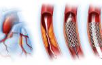 Физические нагрузки после инфаркта миокарда и стентирования